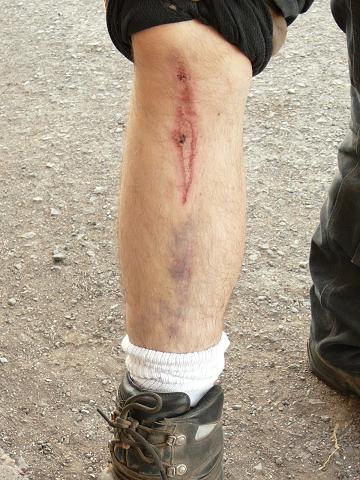Justin's leg